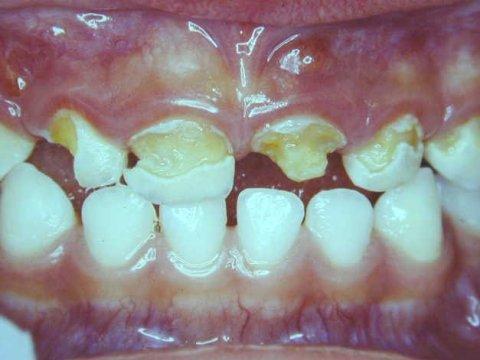 麦芽口腔治疗蛀牙效果图