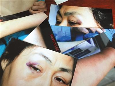昨天,相片显现状师眼角、手臂等处有创痕。当事状师称,4月2日她在通州法院遭法官法警殴伤。 新京报记者 左燕燕 摄