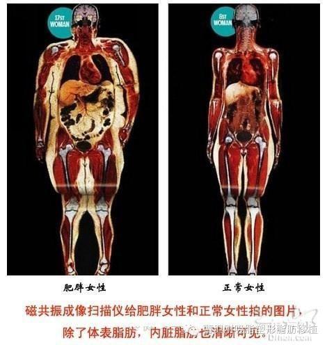 人体脂肪_内脏脂肪是人体脂肪的一种,包绕保护着内部脏器,这部分脂肪无法通过