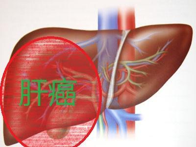腐烂的食物是否会引发肝癌晚期
