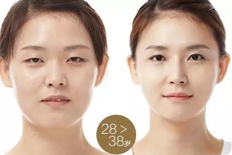 韩国natural_韩国Natural综合美眼术明星电眼·耀目一生塑