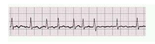 心房颤动:P波消失,代之以