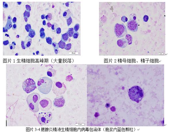 炎细胞红蓝铅笔手绘图