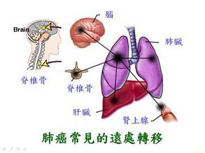 肺癌晚期有什么症状_肺癌晚期六大典型症状