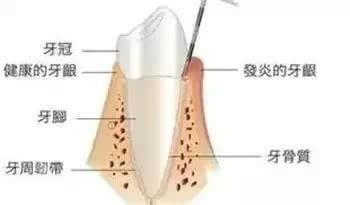 牙疼怎么办 立刻