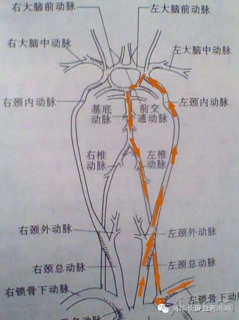 盗 症候群 血 動脈 下 鎖骨