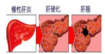 肝癌去世,人体肝脏有多重要图片