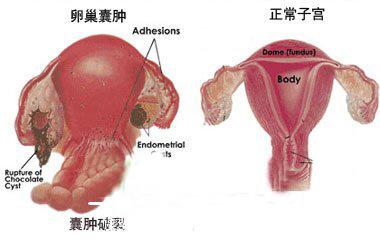 孕不育专家讲患宫颈囊肿必须切除吗