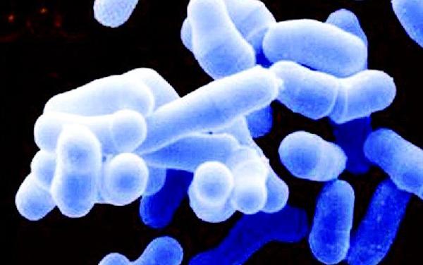 杀手 海洋创伤弧菌