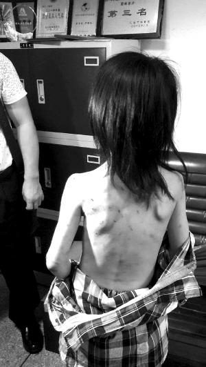 小琳身上充满斑斑驳点的创痕和血痂。