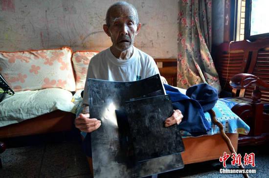 原文配图:四川94岁抗战老兵体内藏子弹60年后才知情。