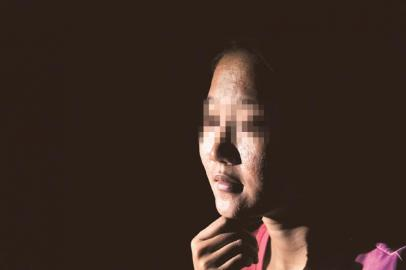 刘琴运用伴侣卖的面膜,招致脸部过敏,长满了小痘痘。