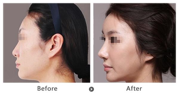 自体软骨隆鼻 打造天然永久美鼻