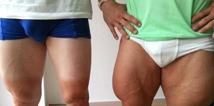 大腿内侧这种黑暗示有毒
