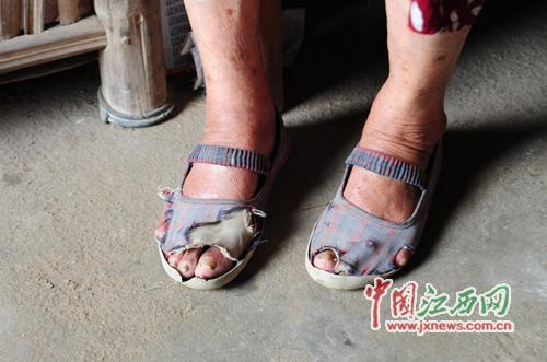白叟穿的鞋子曾经褴褛不堪