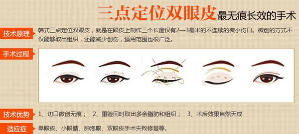 专家分析指出:三点定位双眼皮图片