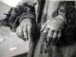 接受试验者的手被冻伤24小时之后的状况。