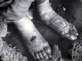 被冻伤的脚。
