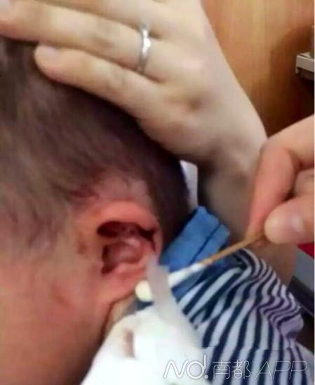 网帖贴出了男童耳朵缝针后的图像。来历:网友阳光南儿飞