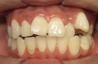 种儿童牙颌畸形