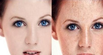 如何让皮肤变白细腻_