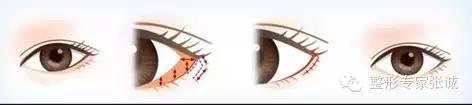 开眼角会留疤吗 开眼角之后要如何护理(2)