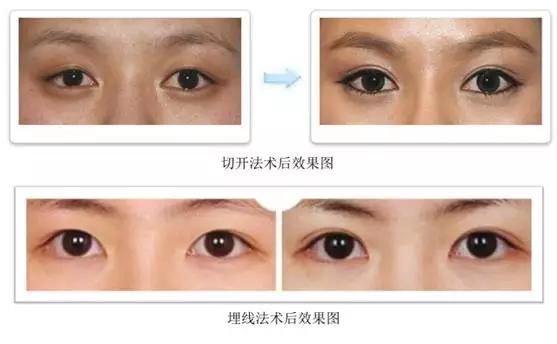 埋线双眼皮 双眼皮手术