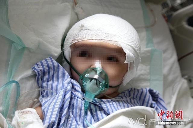 """7月15日,湖南株洲三岁女""""大头娃娃""""在湖南省第二公民病院(湖南省脑科病院)胜利承受了全世界首例""""全脑减少整形""""手术。这名来自湖南株洲的三岁女孩因脑积水招致头颅体积是失常孩童的4倍大,头重约占体重一半以上,颅内85%是脑积水,失常成人的头围约50公分,而她的头围到达了85公分之巨。湖南省第二公民病院 供图"""