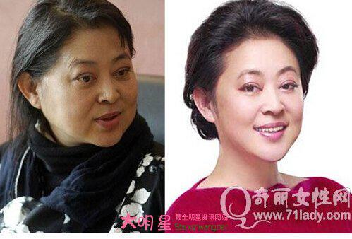 原央视著名主持人倪萍整容前后对比照