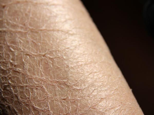 皮肤干燥起皮