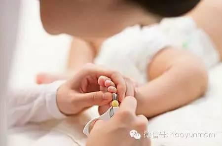 宝宝剪了舌根需要注意什么