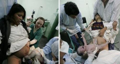 痛苦接生现场 产科医生为孕妇做产道扩张术全过程