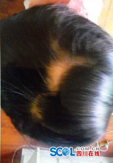 江油一幼儿园再发伤害事件 3岁幼女七天内两次受伤
