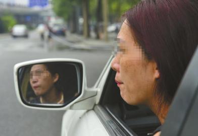 赵女士到美容医院激光祛斑一年半后患上白斑病。