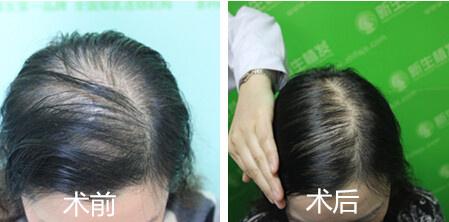 弥散性脱发的女性脱发适合头发加密.