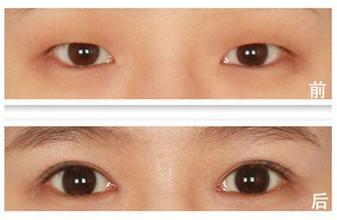 北京韩式三点双眼皮术