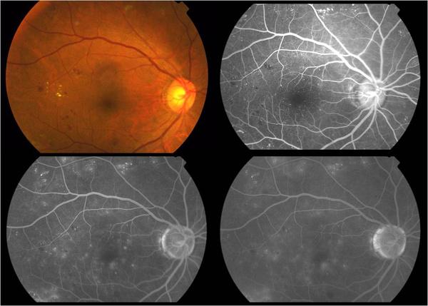 激光光凝术预防视网膜脱离