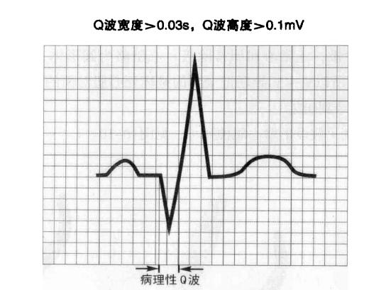 性吧之影_健康 正文  特点:出现病理性q波. (三)心肌梗死的定位诊断 责任编辑
