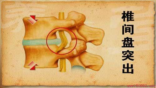 腰间盘突出已成为职业病,请牢记这些锻炼方法