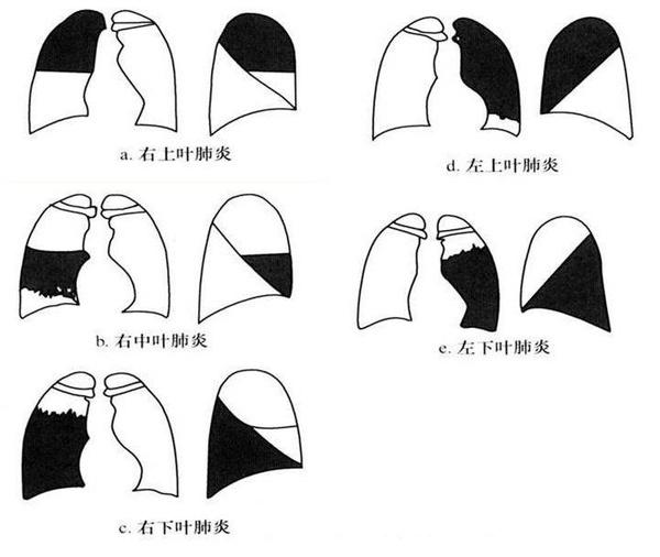 肺的解剖结构图讲解