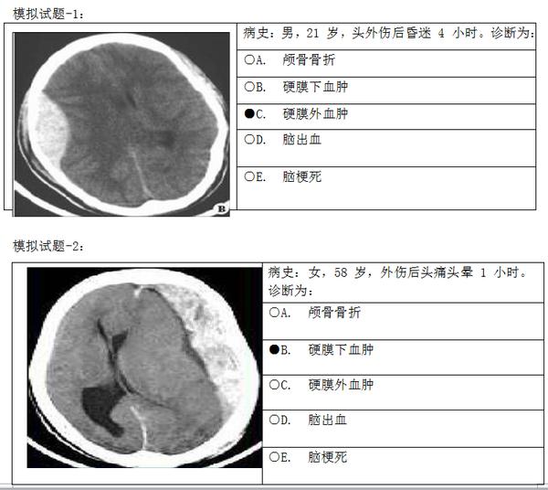 儿童脑颅骨高清结构图