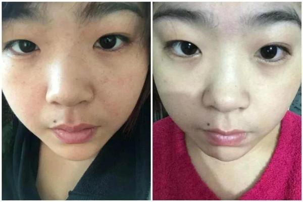 国产无码分享第一站_【笑笑老师分享】 斑点肌肤改善