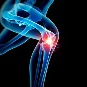 常见跑步膝盖疼痛原因 专家教你简单预防和治疗