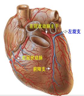 """心脏血管前降支_306医院:冠状动脉""""搭桥""""术的护理_搜狐健康_搜狐网"""