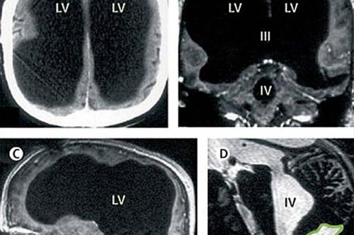 X光片显示,该男子75%的脑组织已消失不见。