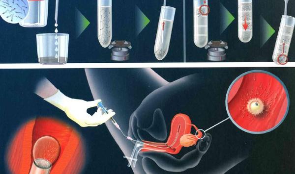 胚胎移植过程详细介绍