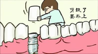 出现牙齿缺失后应该及时修复,因为牙齿一旦缺失,整个口腔的平衡就会被