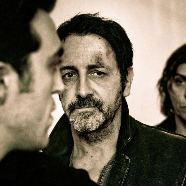 手部受伤的法国演员Jean-Hugues Anglade