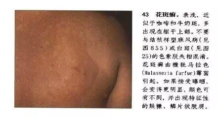 汗斑-全国名老中医秘方