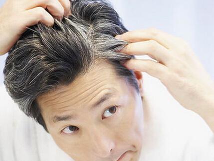治疗白头发的科学方法图片